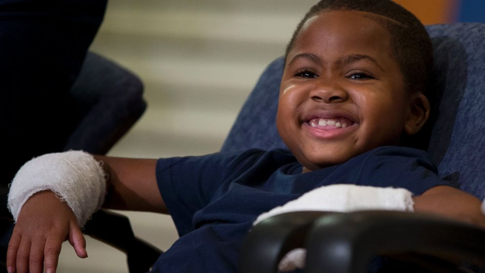 8 Year Old Becomes Youngest Person To Receive A Double Hand Transplant