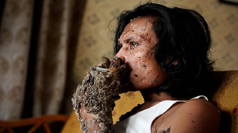 "Indonesian ""Tree Man"" Dies At Age 42"